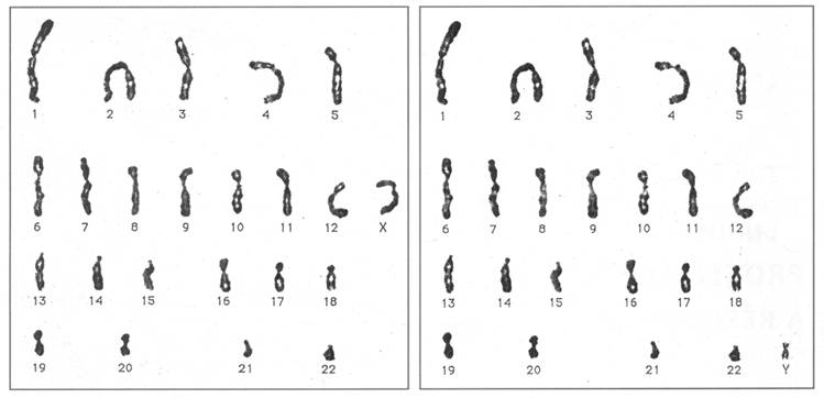 CHAPITRE 3 : Ch... Y Chromosome
